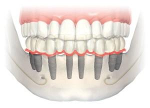 Protesis-completa-sobre-implantes