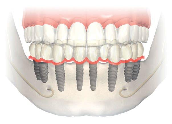 Resultado de imagen de protesis fija sobre implantes