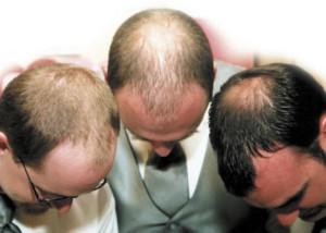 Tranplante de pelo