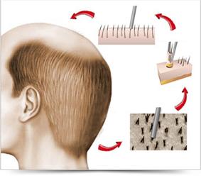 transplante pelo fue